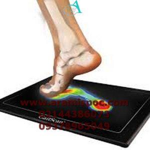 اسکن کف پا برای تشخیص کف پای صاف