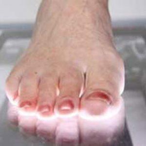 موارد ضروری برای اسکن پا و کفی طبی
